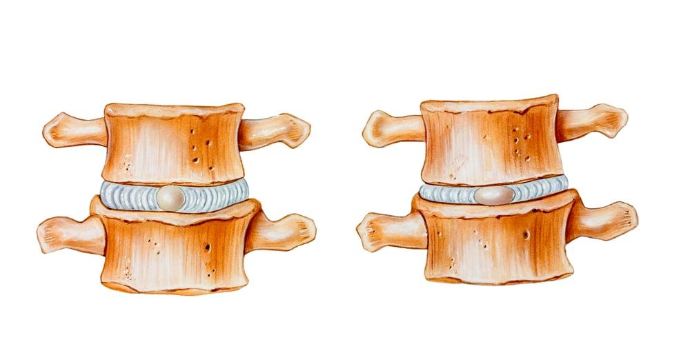 Disque intervertébral sain vs disque intervertébral détérioré