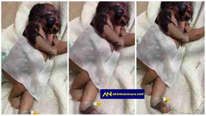newborn baby suffers burns