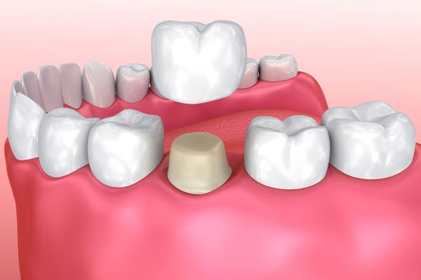 Stone Mountain Dentist | Snellville Dentist