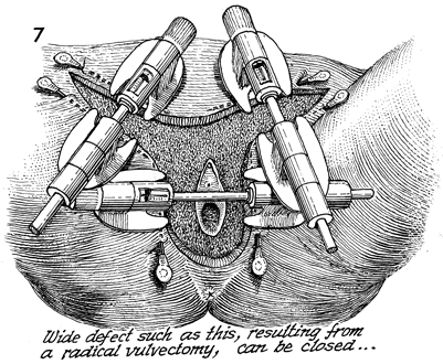 After Stretching Tension Has Been Removed From The Skin Of The Inguinal Node Dissection The Skin Of The Vulva Resection