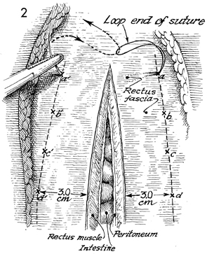 Massive Closure of the Abdominal Wall With a One-Knot Loop