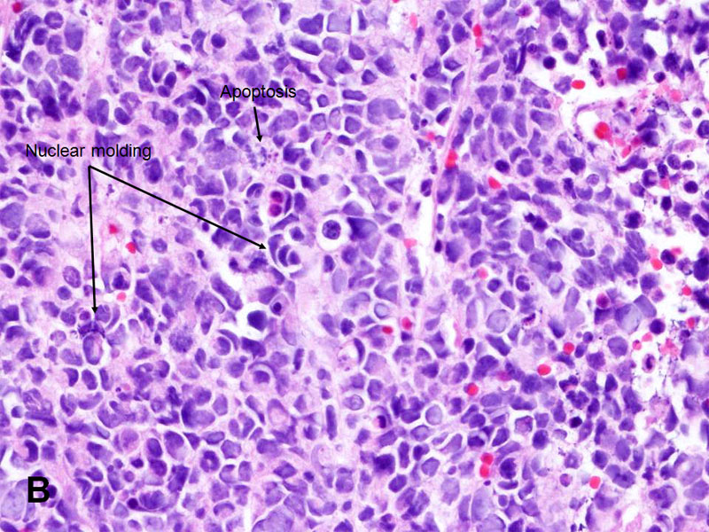 American Urological Association - Small Cell Carcinoma