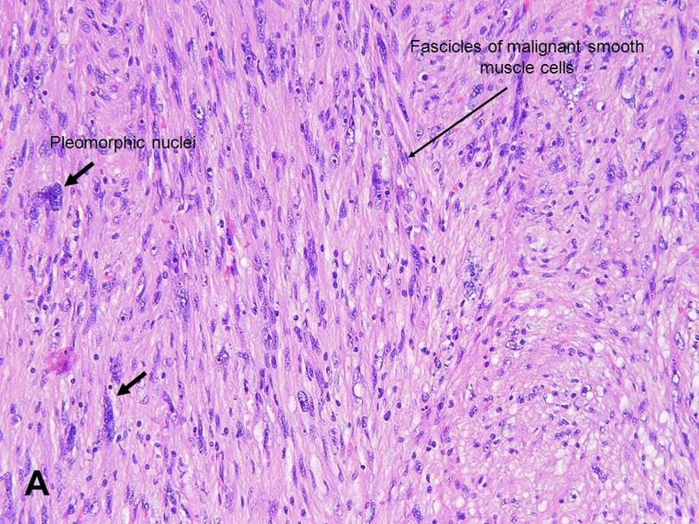 American Urological Association  Leiomyosarcoma