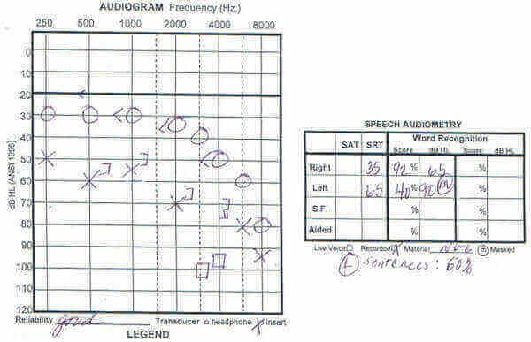 Understanding Your Audiogram