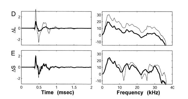 Transformadas de Fourier das repostas do ouvido direito e esquerdo