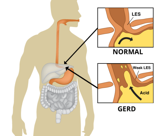 Heartburn Or Acid Reflux Describes The Condition When The Sphincter Muscle In Between The Esophagus And The Stomach Relaxes At The Wrong Time Causing The