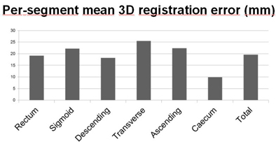 Study validates prone-supine registration algorithm for VC