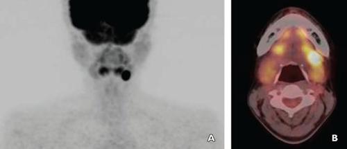 PET/CT of submandibular gland tumor