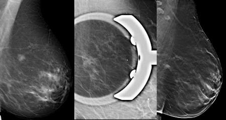 Breast tomo equal to digital spot compression