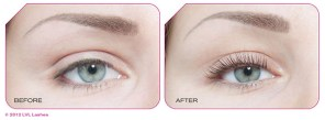 Aurora Skin Clinics: Photos Showing beofre and after results for LVL Lash treatment