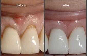 AlloDerm® for Gum Recession