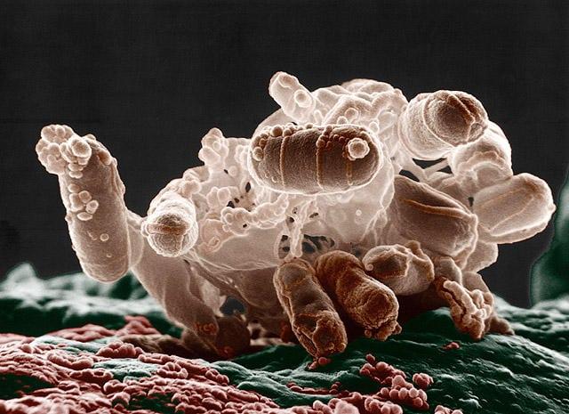 E. Coli The Superbug