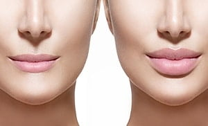 Lip Filler near me from Austin Brewer using Juvederm® filler