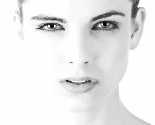 dermal fillers for acne scars