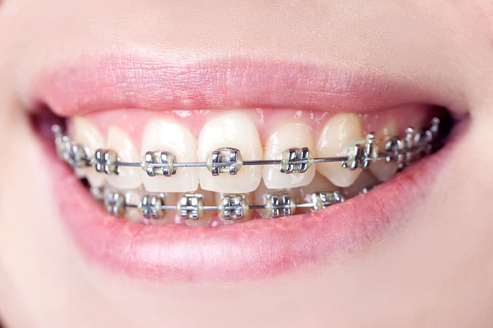How Much Do Teeth Braces Cost Australia Dental