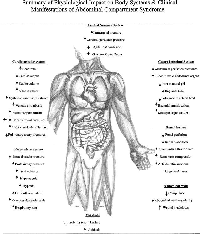 A critical care nurse's guide to intra abdominal