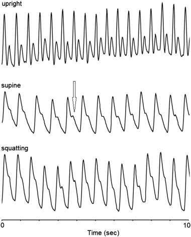 Arterial flow waveforms, vascular tone, and chronic