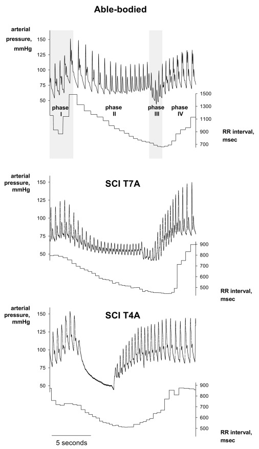 Baroreflex autonomic control in human spinal cord injury