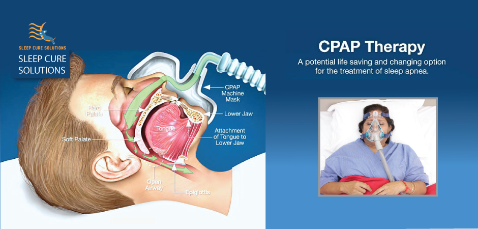 cpap-treat