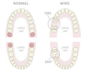 brokenteeth.jpg