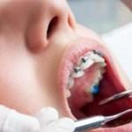 Ortodonti Tedavi 2 300x169