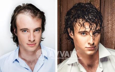 mens hair loss restoration madison wisconsin