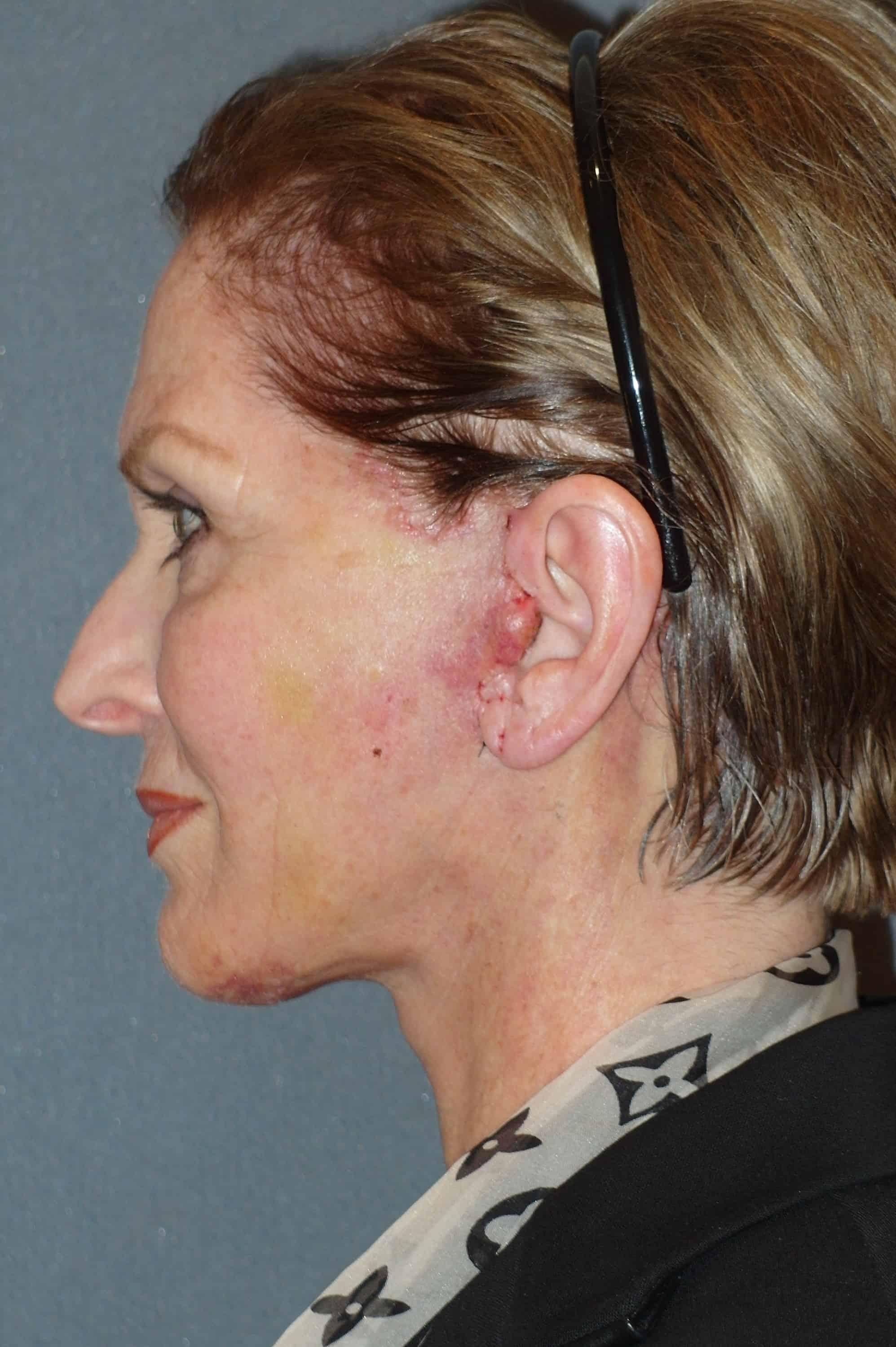 Post Lift: Post Neck Lift Swelling