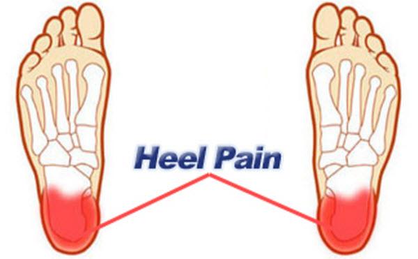 ayurvedic remedy for heel pain � remedy 1 ayurpedia
