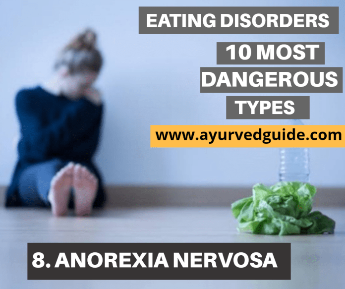 Eating Disorders-Anorexia Nervosa