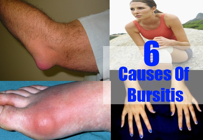 Causes Of Bursitis