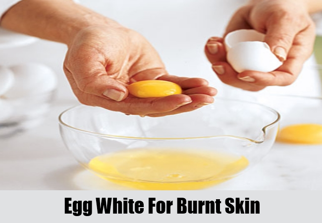 Egg White For Burnt Skin