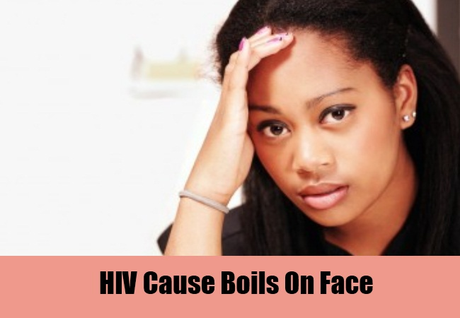 HIV Cause Boils On Face