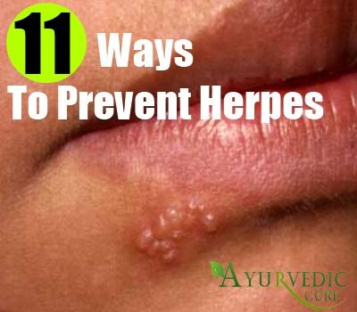 Best Ways To Prevent Herpes | Herbal Supplements