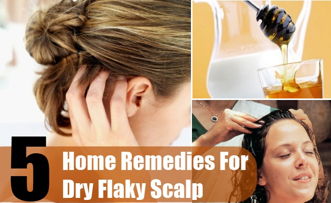Home Remedies for Dry Flaky Scalp