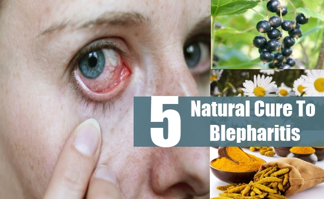 Natural Cure To Blepharitis