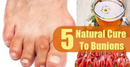 Natural Cure To Bunions