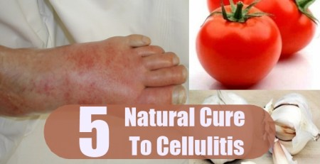Natural Cure To Cellulitis