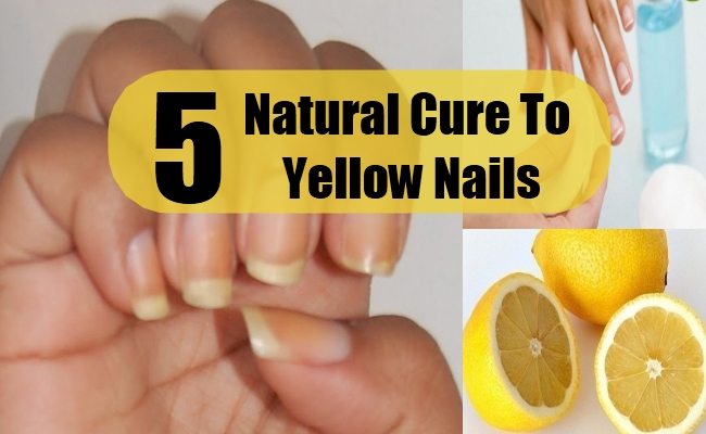 Natural Cure To Yellow Nails