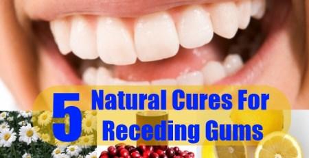 Natural Cures For Receding Gums