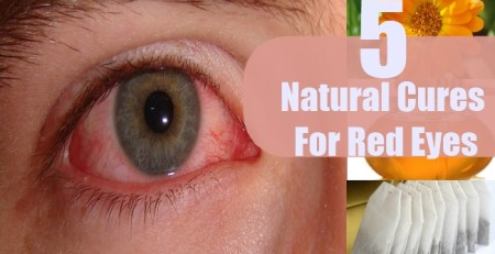 Natural Cures For Red Eyes