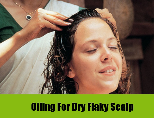 Natural Remedy For Very Flaky Scalp