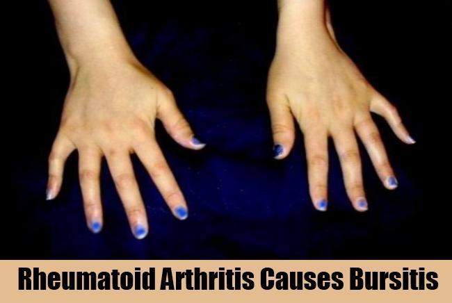 Rheumatoid Arthritis Causes Bursitis