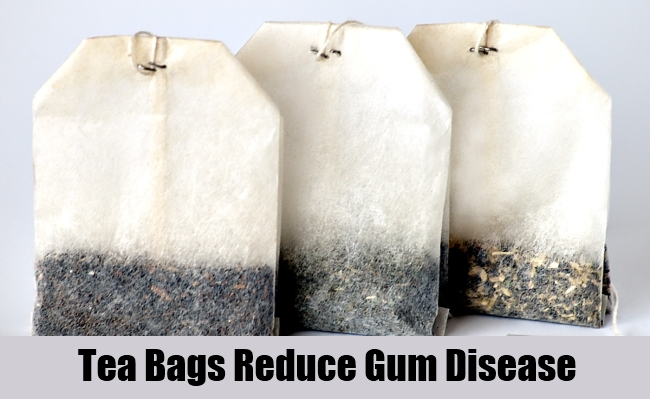 Tea Bags Reduce Gum Disease