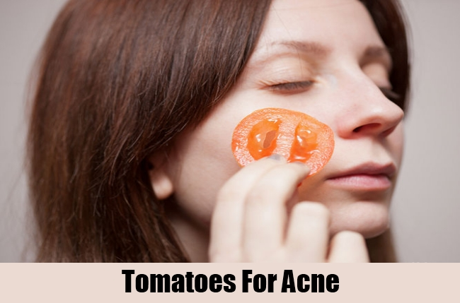 Tomatoes For Acne