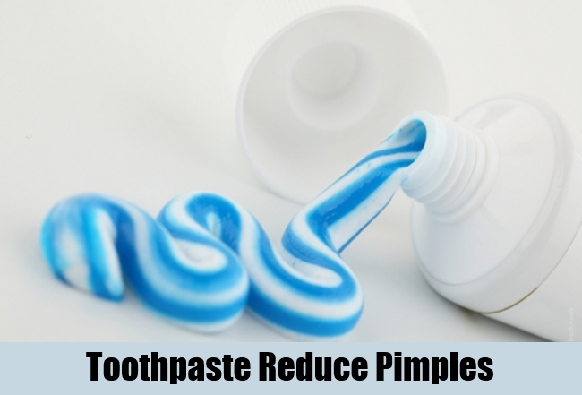 Toothpaste Reduce Pimples