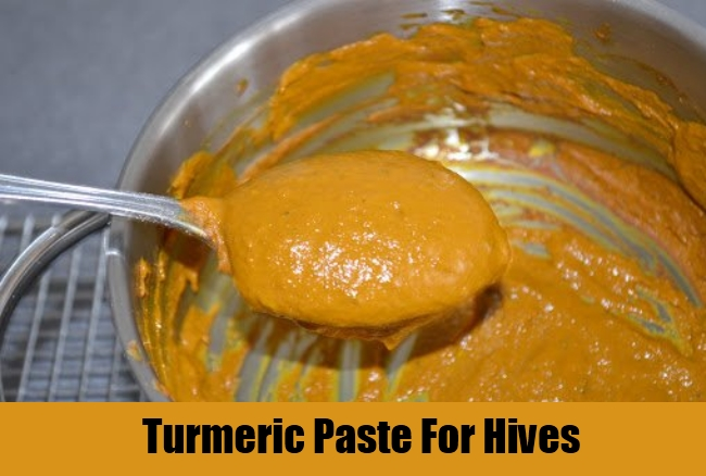 Turmeric Paste For Hives