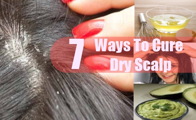 Ways To Cure Dry Scalp