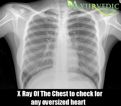 X Ray Of The Chest