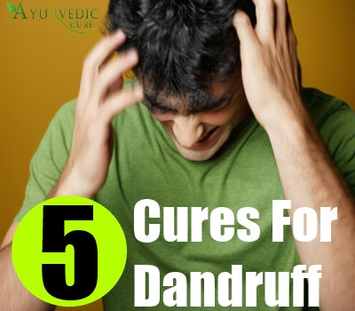 5 Cures For Dandruff