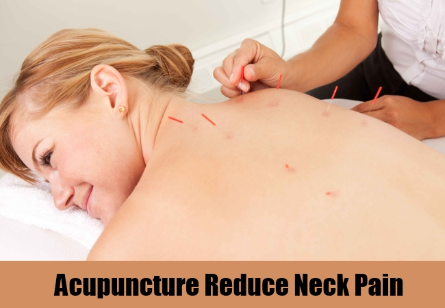 Acupuncture Reduce Neck Pain